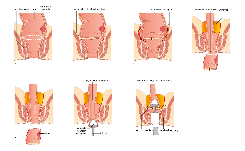 rectum resectie